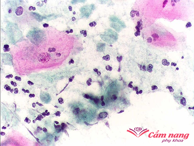 viêm âm đạo do nấm